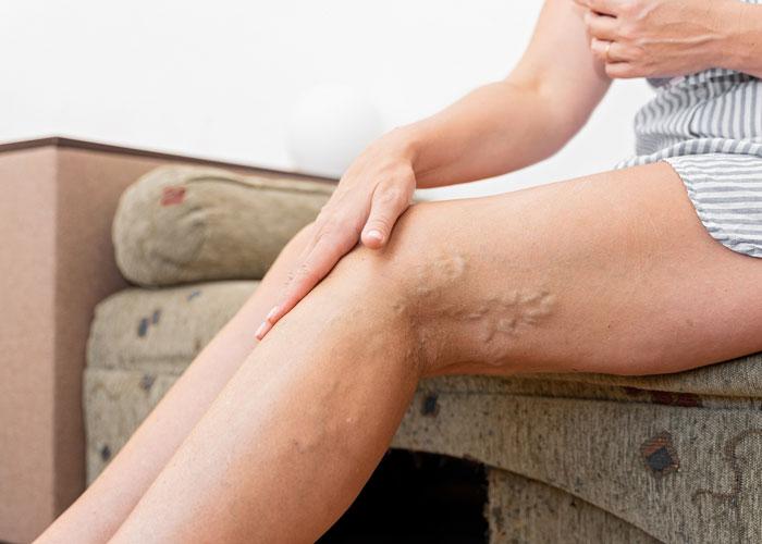 Varicose Vein Disease